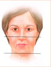 подтяжка нижней трети лица