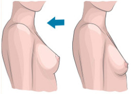 увеличение груди имплантами