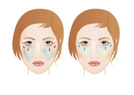 пластика лица