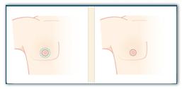 коррекция гинекомастии