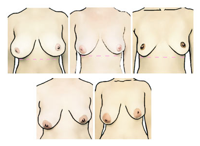 коррекция асимметрии груди