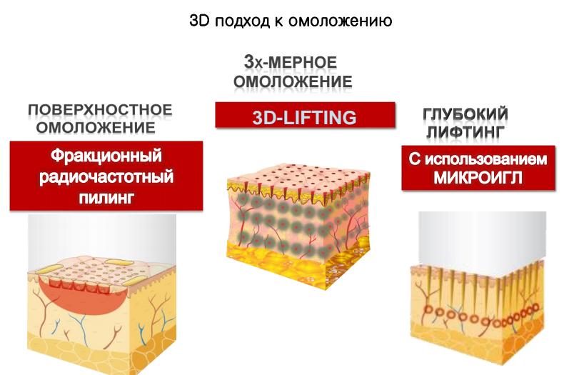 Infini 3D lift