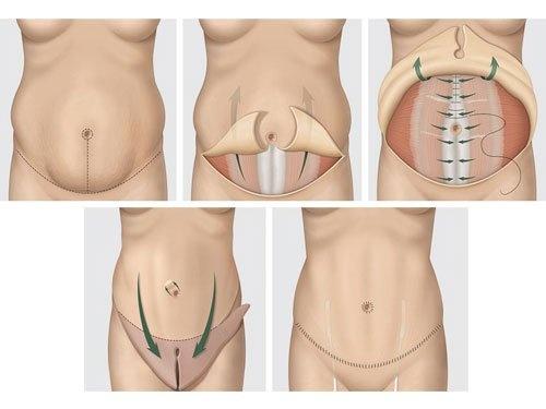 операция абдоминопластика