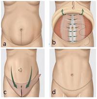 абдоминопластика ход операции